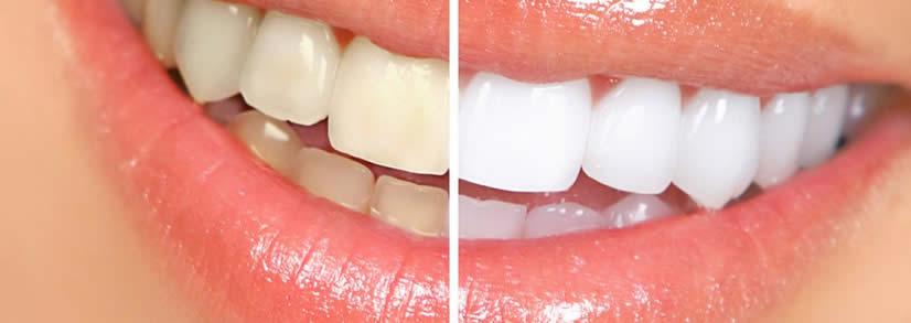 Clareadores Dentais Terao Prescricao Para Sua Venda